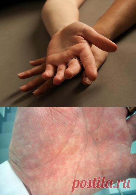 Признаки заболеваний на руках | Здоровье проявляет красоту | Яндекс Дзен