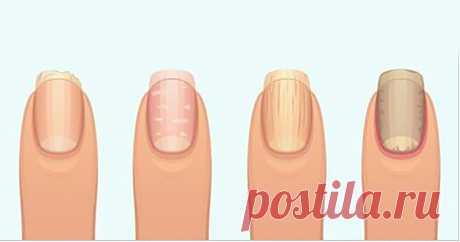 Это то, о чем ваши ногти предупреждают вас: срыв органа, воспаление или еще хуже! - Счастливые заметки