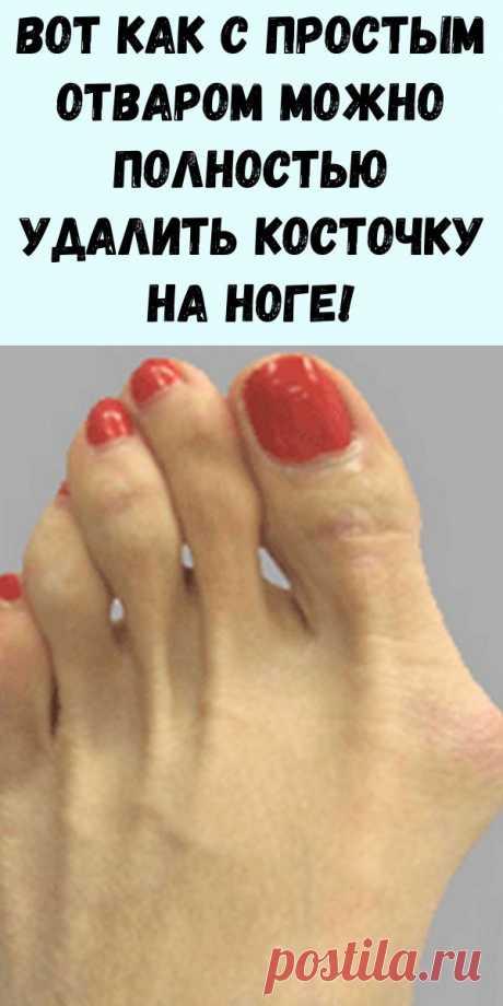 Вот как с простым отваром можно полностью удалить косточку на ноге! - Интересный блог