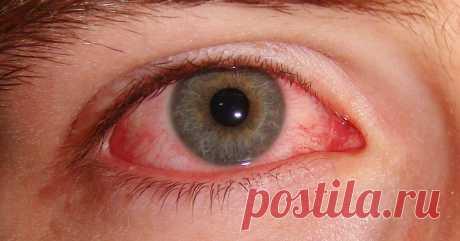 Домашние средства от глазных инфекций и слезотечения: 4 мощных средства! (видео) - Страница 2 из 2 Тёплый компресс Теплый компресс поможет лечить глазную инфекцию, такую как раздражение глаз или конъюнктивит, а также помогает быстрее устранить инфекцию.Тепло компресса помогает увеличить приток крови к инфицированному глазу. В результате это может ускорить процесс заживления. Смочите чистую безворсовую ткань теплой водой и выжмите излишки. Держите глаза закрытыми и приме...