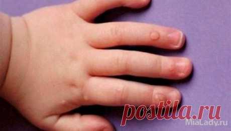 Аллокин альфа отзывы при лечении папиллом. Как удалить бородавку
