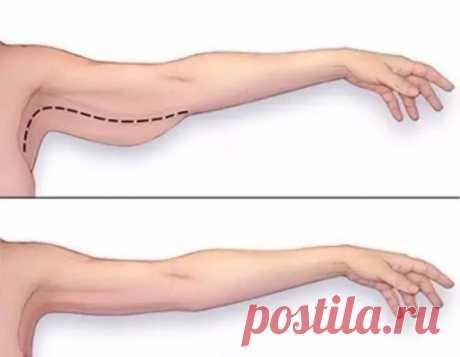 ИЗБАВЛЯЕМСЯ ОТ ДРЯБЛОСТИ РУК  Первое упражнение предназначено для развития трицепсов нижней части рук. Упражнение укрепит мышцы, подтянет кожу и уменьшит дряблость рук. Для начала сядьте на стул с прямой спинкой, поставьте ноги перед собой, колени вместе. Разведите руки в стороны. Потяните одновременно обе руки назад, как бы пытаясь соединить локти сзади. Держите руки прямыми, сохраняйте такое положение, пока не почувствуете напряжение в мышцах. Досчитайте до трех, после ч...