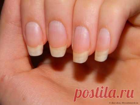 Чтобы ногти всегда выглядели ухоженными и были белыми, длинными и крепкими советую этот рецепт!