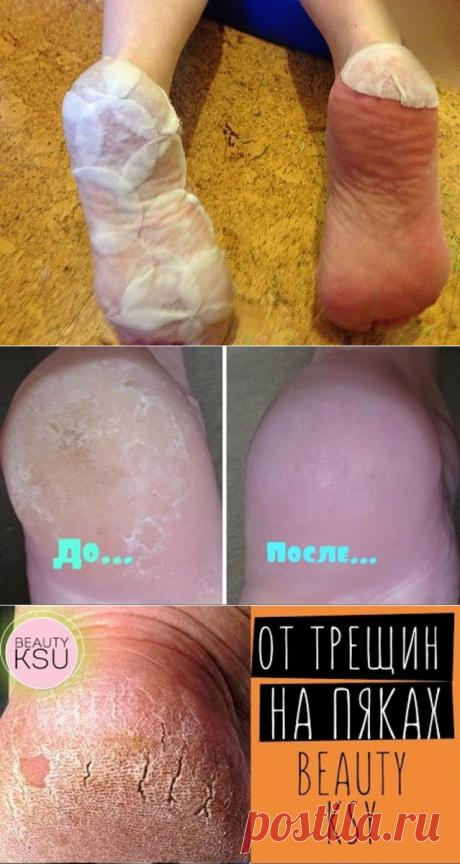 Огрубевшая кожа на пятках — проблема, которая преследует не только мужчин, но и многих женщин. Причиной возникновения такого изъяна могут стать грибковые заболевания, нехватка витаминов, ношение неудобной обуви, а также нарушения в работе эндокринной системы.