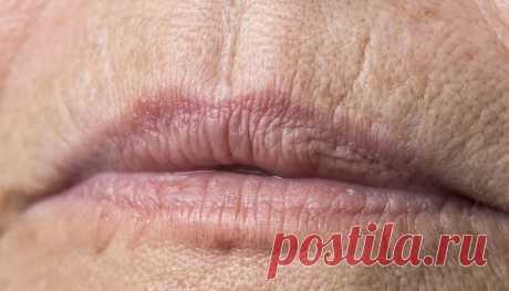 Как убрать морщины над губой   Журнал Амром Как убрать морщины над губой. Существует множество медицинских процедур для удаления морщин на губах. Вы также можете попробовать некоторые домашние средства