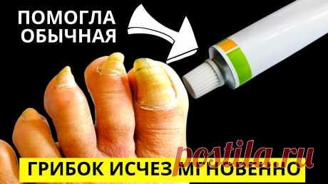 Эта ЯДРЁНАЯ Советская Мазь Разъест Весь Грибок с Ногтей!   Она абсолютно универсальна, убивает микробы, бактерии, грибки и вирусы, обеззараживает поверхность ногтя и очень быстро снимает воспаления. Борная кислота стоит совсем недорого, её можно использовать наружно, без побочных эффектов, и самые запущенные стадии грибка будут вылечены в кратчайшие сроки, даже в сравнении с мощными и дорогими медикаментами.