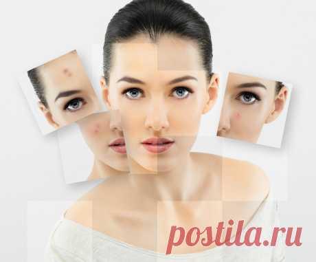 Гепариновая мазь для лица: свежее и подтянутое лицо уже после нескольких дней применения — Копилочка полезных советов