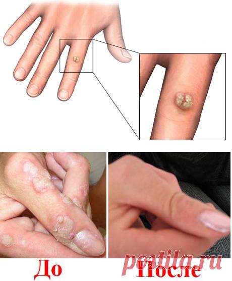 Как избавиться от бородавок на руках и пальцах: чем вывести бородавки?
