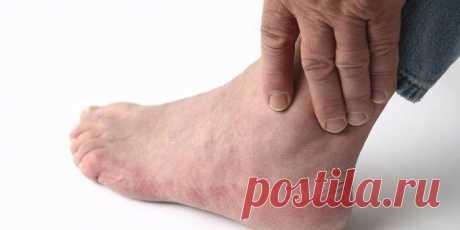 Ночные судороги ног у женщин, мужчин и пожилых: от чего сводит мышцы, как лечить конечности