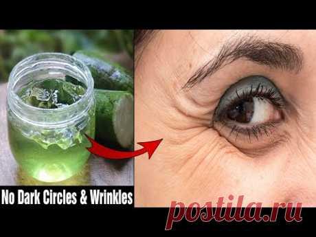 Как удалить морщины под глазами, темные круги и опухшие глаза в домашних условиях?