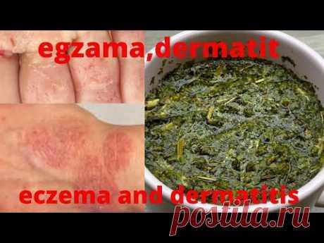 Как вылечить экзему, кожный дерматит и аллергию за 1 неделю