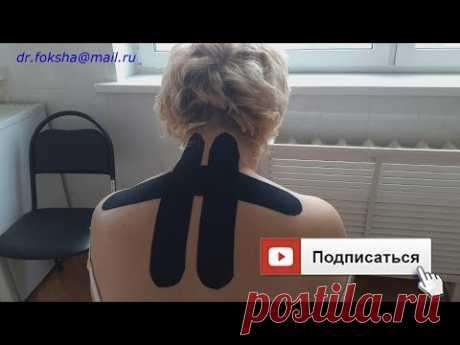 ШЕЙНЫЙ ОСТЕОХОНДРОЗ   Тейпирование   Kinesio taping