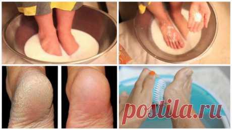 Не тратьте деньги на педикюр: используйте эти два ингредиента с вашей кухни и ваши ноги будут выглядеть потрясающе!
