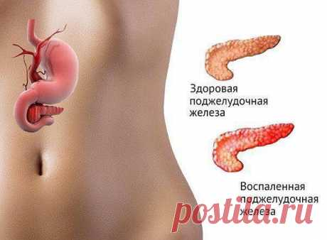 The pancreas is cured by a flax seed. Very simple recipe. IF the PANCREAS DISTURBS...