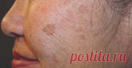 2-компонентное домашнее средство для избавления от коричневых пятен на вашей коже      Возрастные пятна кажутся неизбежной частью нашей жизни. Эти маленькие коричневые пятна обычно появляются на коже после воздействия солнца, но они также могут быть признаком старения. Именно по эт…