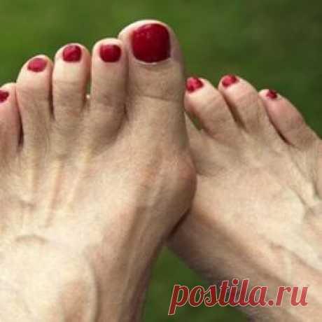 Упражнения от косточек на ногах возле большого пальца стопы: комплекс и техника выполнения