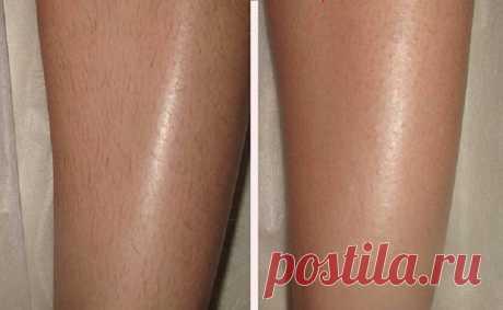 Как надолго избавиться от нежелательных волос: гладкие ноги даже спустя 14 дней!