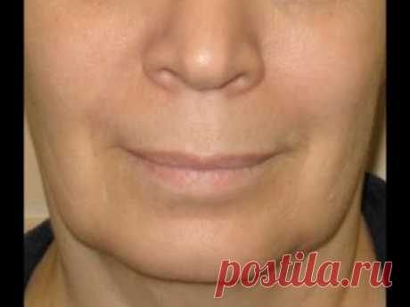 Простые упражнения, чтобы подтянуть брыли и  восстановить овал лица.