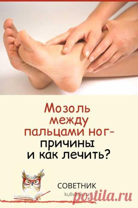 Мозоль между пальцами ног: причины и как лечить?