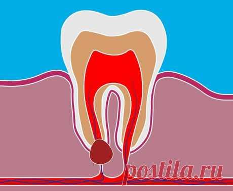 Как лечить кисты и гранулемы с точки зрения современной стоматологии - медиаплатформа МирТесен
