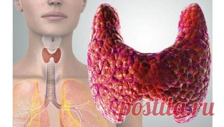 Загадочный ТТГ при гипотиреозе | Клиника щитовидной железы | Яндекс Дзен