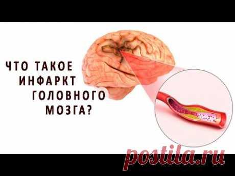 Что такое инфаркт головного мозга?