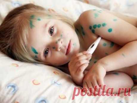 Ветрянка у детей - очень распространенное заболевание, для ветрянки характерна сыпь. Болезнь чрезвычайно заразна, поэтому ребенок должен быть изолирован.