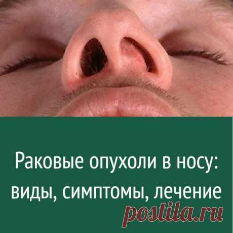 Раковые опухоли в носу: виды, симптомы, лечение