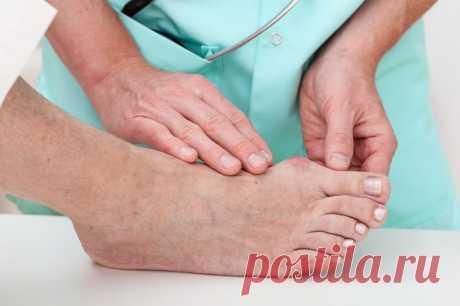 Косточка на ноге — что делать, если болит и растет. Лечение в домашних условиях