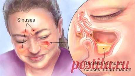 Избавьтесь от гайморита в течение нескольких минут, благодаря ингредиенту, который уже у вас на кухне! Гайморит (синусит)— это состояние воспаленной подкладки стен пазух. Эта проблемазатрагиваетмногихлюдей, и они всегда пытаются найти лекарство.     Вотобщие симптомы, когда вы страдаете от хронической инфекции синуса:    головные боли  лихорадка  потеря обоняния  заложенный нос