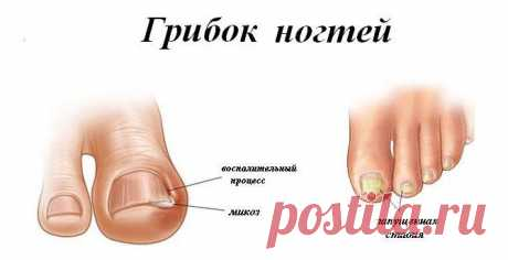 Реальные фото симптомов, как распознать грибок ногтей на ранней стадии. Правила лечения и три лучших препарата для быстрого избавления от онихомикоза.   Ноги > Грибок > Как выглядит грибок ногтей и чем его лечить? ... от инфекции кожи, например, после того, как она была занесена на пальцы рук или ног.