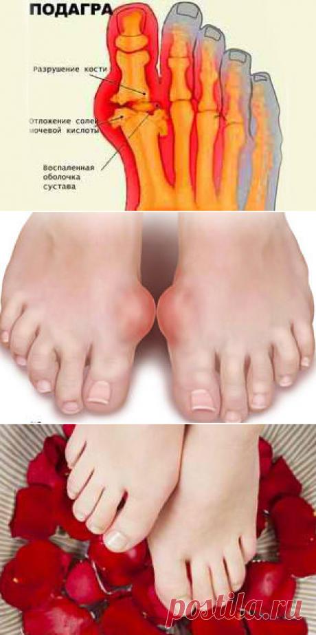 Подагра - причины, признаки, симптомы и лечение. Подагра на ногах у мужчин