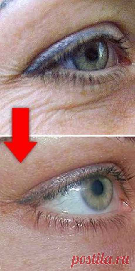 The most effective house cream from wrinkles around eyes!
