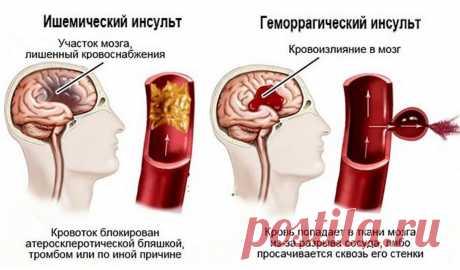 Инфаркт мозга: что это такое и чем отличается от инсульта