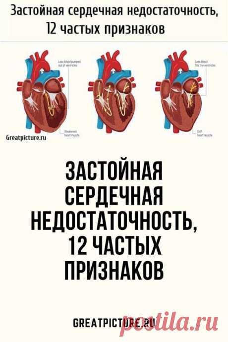 Застойная сердечная недостаточность, 12 частых признаков.Большинство людей не знают, что застойная сердечная недостаточность затрагивает 5% людей старше 60 лет и 2% людей в возрасте от 40 до 60 лет; это также может повлиять на детей, подростков и молодых людей. Это затрагивает мужчин и женщин в равной степени.Люди с сердечной недостаточностью часто оказываются госпитализированными несколько раз, и пятилетняя выживаемость после постановки диагноза составляет менее 50%.