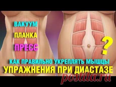 Диастаз. Упражнения при расхождении белой линии живота. Лечение диастаза