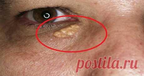 Природные средства для исцеления отложений ксантелазмы или холестерина вокруг глаз - Советы для тебя