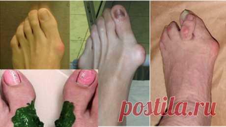 Шишка на ноге уходит мгновенно, если мазать перед сном обычным… - Женский Журнал Шишка начинает формироваться с постепенного отклонения большого пальца кнаружи, в следствие чего появляется косточка на большом пальце ноги, по внутреннему краю стопы. Первоначально, на данном этапе шишки могут быть безболезненными. Позже, с прогрессированием отклонения большого пальца, шишка на стопе становится болезненной – может появиться покраснение, некоторая припухлость, или боль в или о...