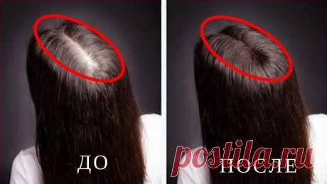 ВОЛОСЫ Растут КАК СУМАСШЕДШИЕ! НЕВЕРОЯТНЫЕ Результаты в КОРОТКИЕ Сроки!!! ВОЛОСЫ Растут КАК СУМАСШЕДШИЕ! НЕВЕРОЯТНЫЕ Результаты в КОРОТКИЕ Сроки!!! Большинство людей считают волосы важным эстетическим и физическим «атрибутом«, кото...