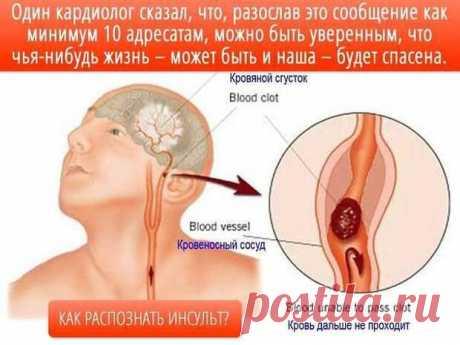 Распознавание симптомов инсульта | ПолонСил.ру - социальная сеть здоровья