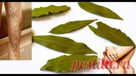 Как избавиться от проблем с памятью, головными болями, варикозом с помощью лаврового листа Это растение не только улучшает вкус и аромат пищи, но и обладает мощными целебными свойствами!