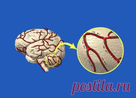 Как очистить сосуды головного мозга. Мощные рецепты народной медицины! №3 мой фаворит!