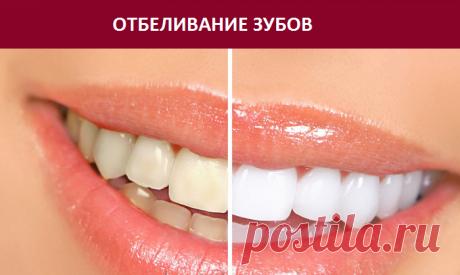 7 простых способов отбелить зубы — ДОМАШНИЕ