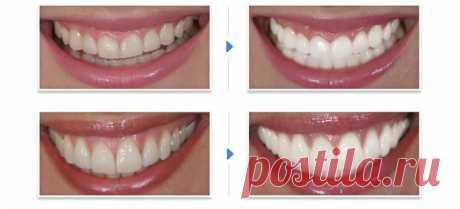 Отбеливание зубов активированным углем - Mamapedia.com.ua