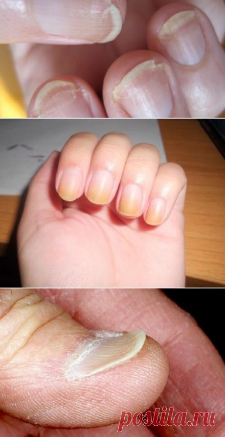 Женщина увидела странные полосы на ногтях. Кто бы мог подумать, что ЭТО спасет ей жизнь!