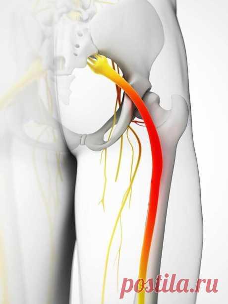 Защемление седалищного нерва: 5 способов облегчить боль Применение компрессов быстро снимает боль при защемлении седалищного нерва. Их действие обусловлено тем, что они расслабляют мускулатуру в пораженной зоне. Ишиас, или защемление седалищного нерва, — э...