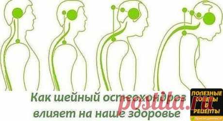БОЛИТ ШЕЯ? КАК ШЕЙНЫЙ ОСТЕОХОНДРОЗ ВЛИЯЕТ НА НАШЕ СОСТОЯНИЕ.  На начальном этапе изменения претерпевают кости и связки. И о том наш организм сигнализирует периодической болью или нарушением чувствительности отдела, пораженного остеохондрозом. Затем появляются трещины и меняется высота стояния диска, а точки прикрепления мышц и связок, принадлежащие двум соседним позвонкам, сближаются.  Поэтому мышцы и связки провисают и позвонки начинают легко соскальзывать или смещаться относительно друг друг