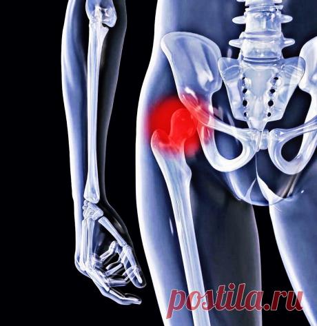 Три главные причины разрушения тазобедренного сустава, которые нужно исключить. | #ЗДРАВБЛОГ | Яндекс Дзен