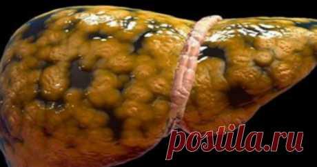 Основные признаки того, что печень нездорова и начинает заплывать жиром - HeadInsider