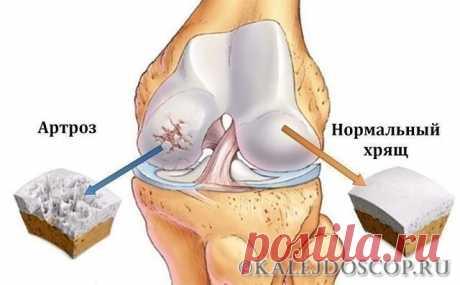 Это скрывали все хирурги! Так лечатся суставы дома за сутки Эта микстура «скорая помощь» от боли в суставах. | Калейдоскоп
